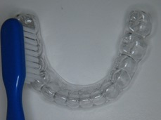 Orthodontic invisible retainer 2